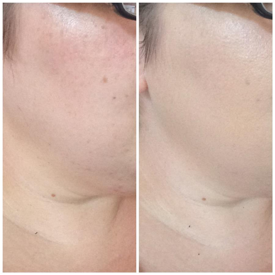 Foundation Stipple Brush, before foundation and after application - msmoomakeup.com